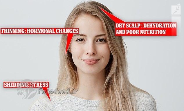 علت نازک شدن و ریزش مو و درمان آن